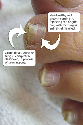 Toenail Fungus Treatments In Naples FL And Bonita Springs FL | The Foot And Ankle Care Center ...