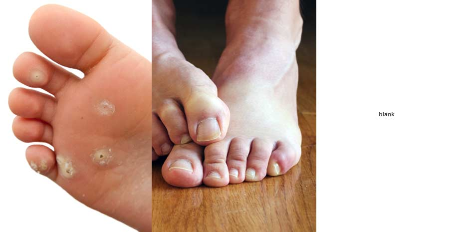 Foot Care in Naples FL | Foot & Ankle Care Center